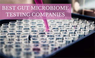 Lab test tubes (caption: Gut Microbiome Testing Companies)